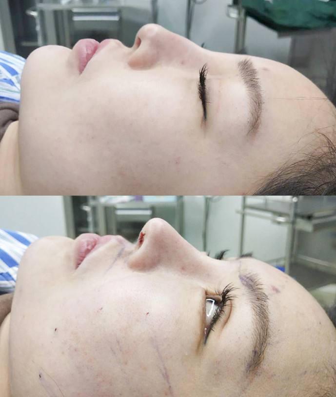 国内最好的鼻子修复专家是谁?