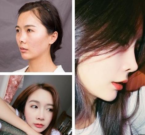 上海做鼻子最好的医生是哪个?