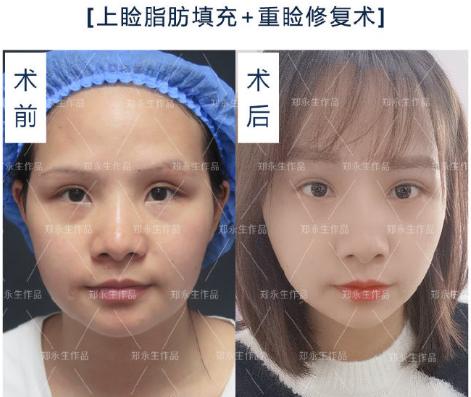 修复眼部的十大专家哪个技术最好?