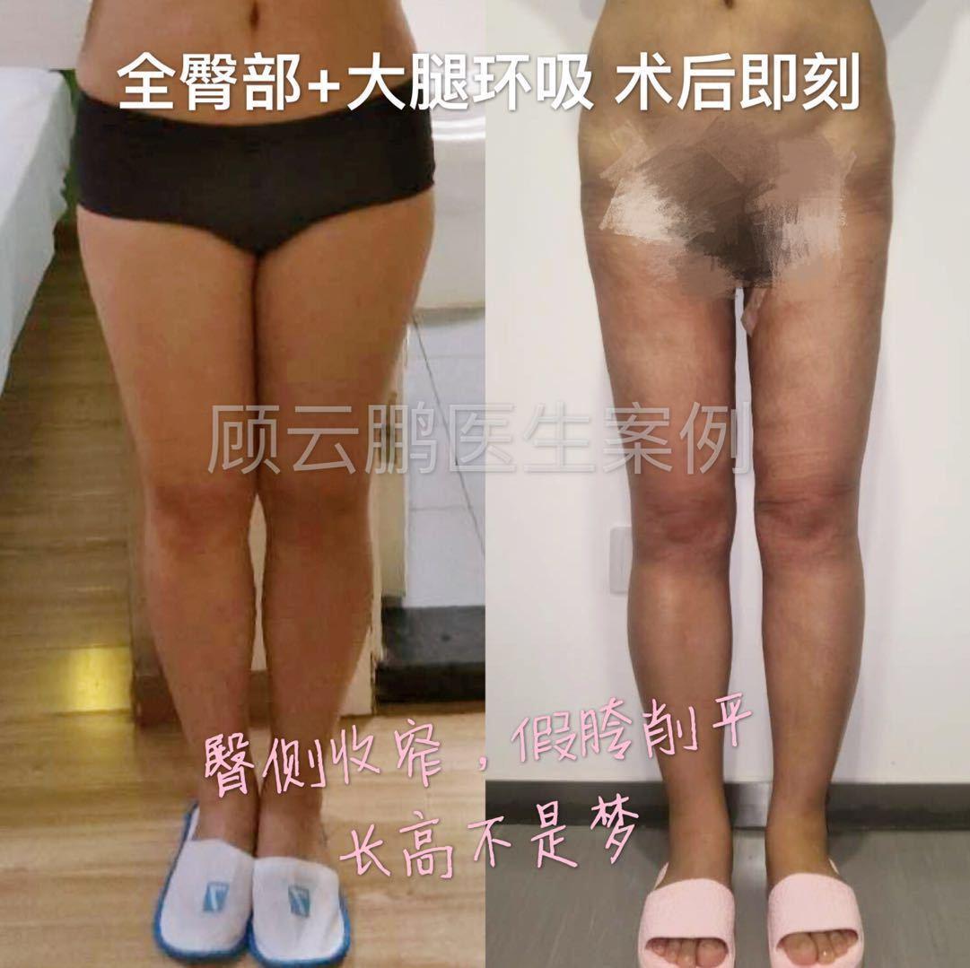 大腿吸脂案例
