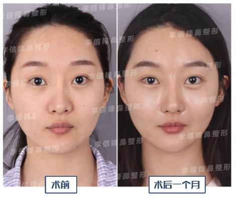 李信峰鼻综合案例