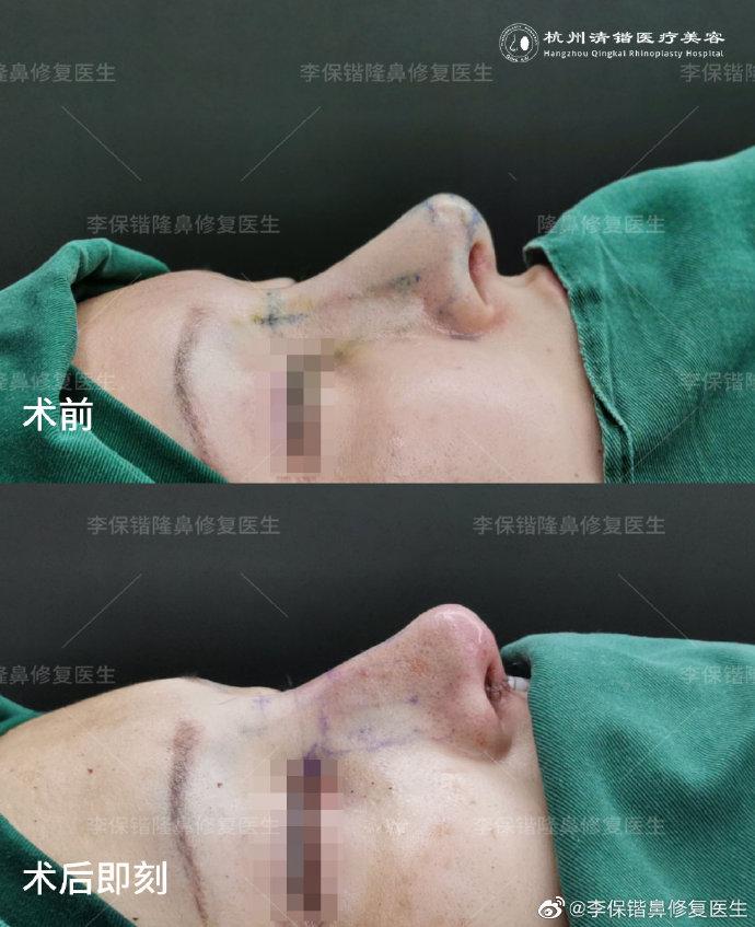 李保锴鼻整形案例