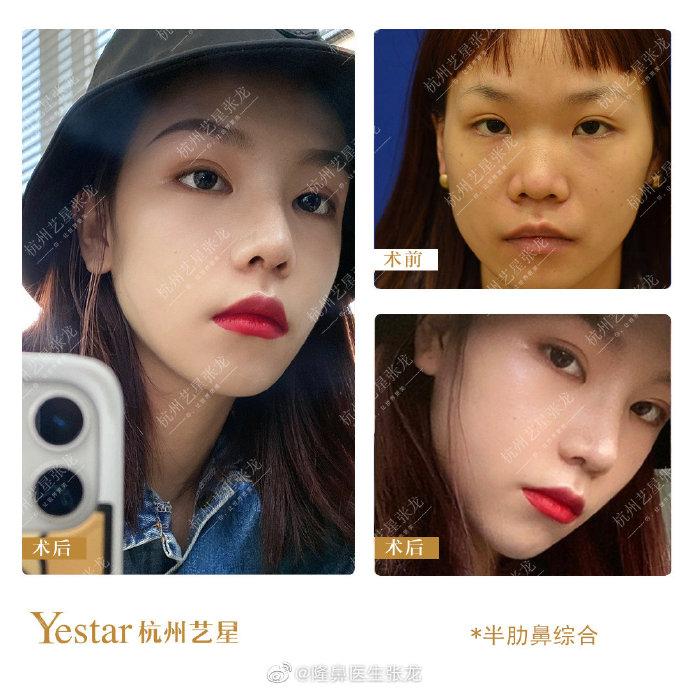 张龙隆鼻案例
