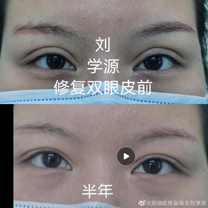 刘学源双眼皮修复案例